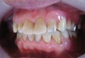 保険の義歯をエステショットに.JPG